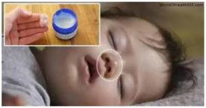 Vicks bebeklerde kullanılır mı? Yanlış kullanım ölümle sonuçlanmış! Buna dikkat edin