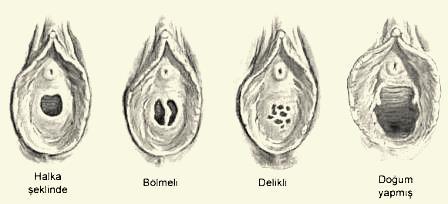 kürtaj sonrası ne zaman cinsel ilişkiye girilir